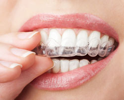 Invisalign in Cockeysville, MD